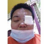 菲律宾狗狗误伤主人,竟导致主人眼角膜破裂,结局却意外暖心479