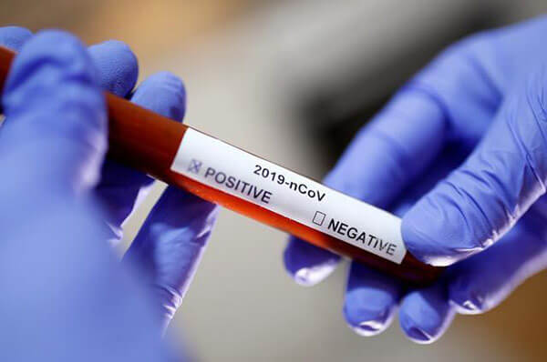 菲律宾急需疫苗